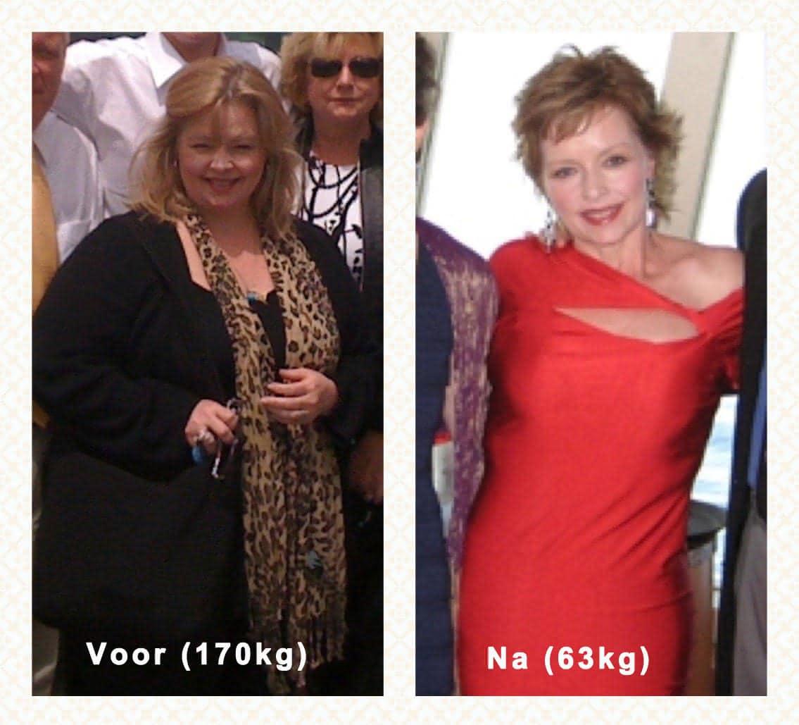 Meer dan 100 kilo afvallen zonder honger