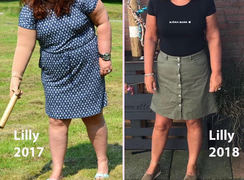 Lilly (52) wint de strijd tegen lipoedeem zonder operatie
