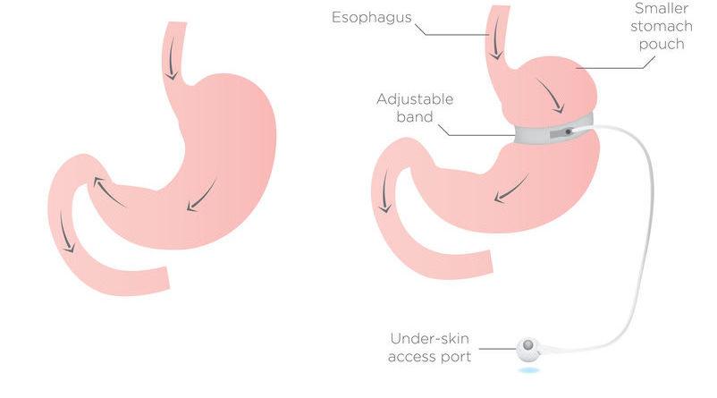 Afvallen na een gastric bypass